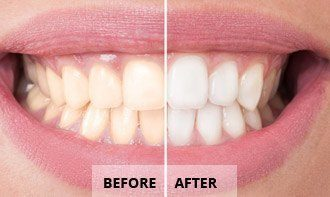 Dentist Tucson - Before After