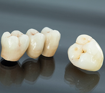 Tooth Crown Tucson - Dental Bridges