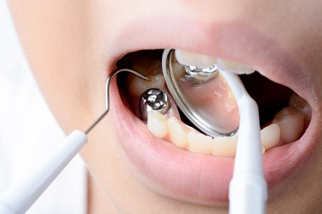 mercury amalgam removal from Dr. Jeanne Anne Krizman DMD MPH, Tucson Biological Dentistry