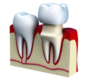Tooth Crown Tucson - Dental Crowns