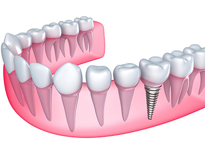 Dental Implant Restorations in Tucson in Tucson AZ area