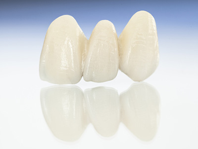 Get a Brilliant Smile with Porcelain Veneers in Tucson AZ area