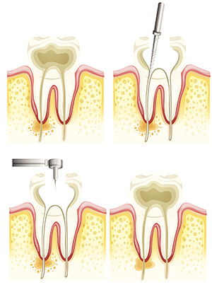 Tucson Root canals for Patient