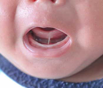 Frenectomy for tongue and lip ties Tucson, AZ
