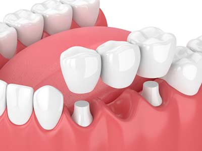 What are Dental Crowns and Tooth Bridges in Tucson, AZ area